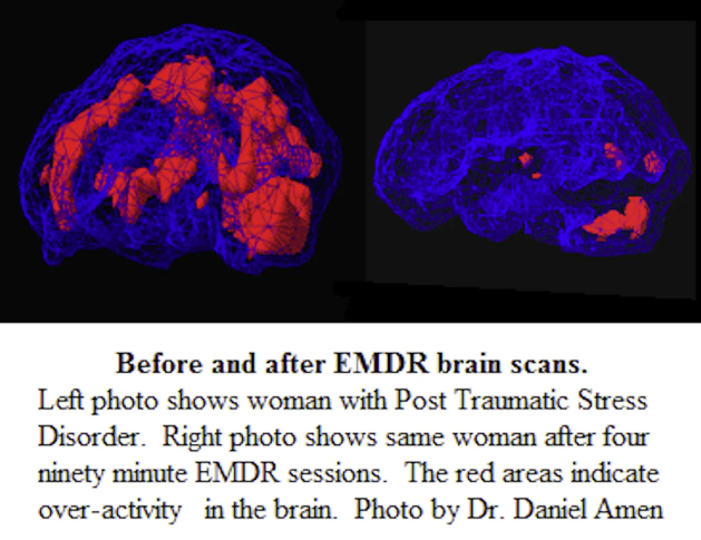 EMDR brain scans